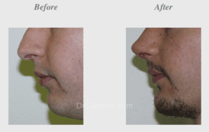 Chin Implants Before & After Photos