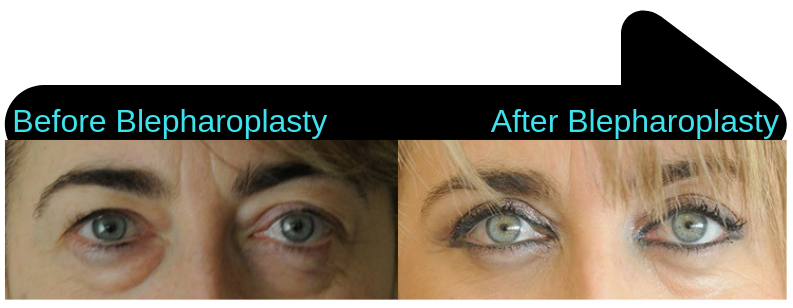 Blepharoplasty surgery, before and after