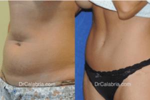 Tummy Tuck Scars Renato Calabria Md Facs