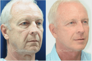 male facelift before and after photos by Dr. Calabria