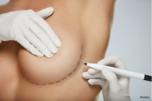 A woman at her breast lift consultation to learn how she will restore her perky breasts and how to recover properly.