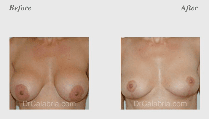 Before and after photos of a breast lift surgery in Beverly Hills, CA.